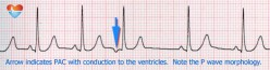 Cardiac Arrhythmia: Premature Atrial Contractions (PACs)