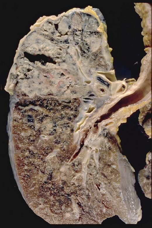 Cavitary tuberculosis
