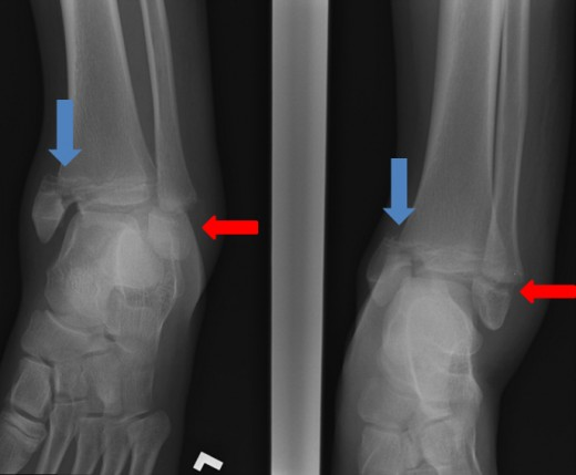 Salter-Harris III fracture of the medial Malleolus (blue arrow) and Salter-Harris I fracture of the lateral Malleolus (red arrow)