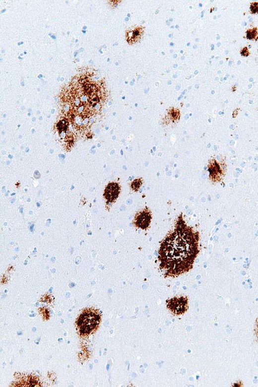 Electron micrograph of a section of cerebral cortex showing the amyloid plaque formation of Alzheimer's disease (darkly stained areas).