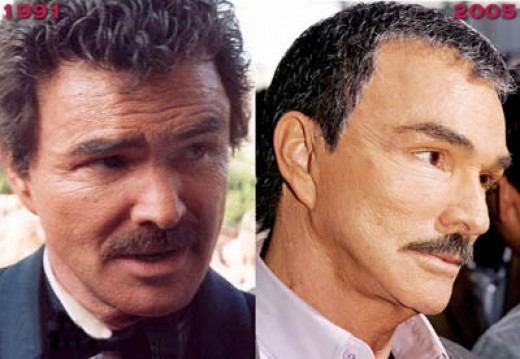 Burt Reynolds, before-and-after