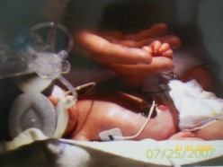 The Neonatal Intensive Care Unit