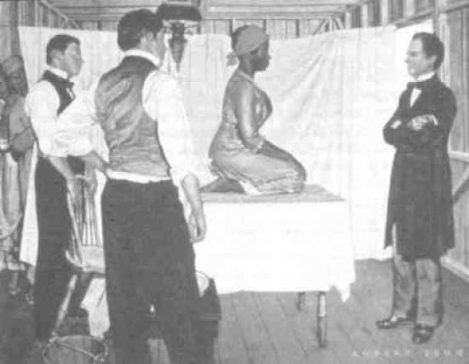 An idealized image of Sims' work with slaves.  His fellow doctors soon abandoned him, disturbed by his failures and the screams of his subjects.  After their flight, the women had to hold each other down during his 'surgery'.