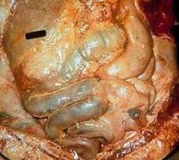 inflamed peritoneum