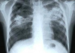 Understanding Tuberculosis and 5 Symptoms Suggestive of It
