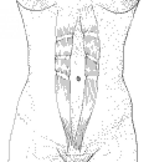 drawing of separated rectus abdominus