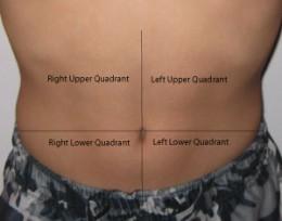 Stomach Cancer Lump