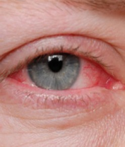 Blepharitis an Eye Sore for Sure