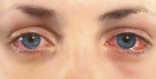 Why do your eyes turn red - Why eyes get red in swimming pool ...
