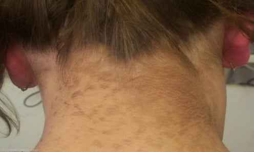 View Slideshow: Acanthosis Nigricans...