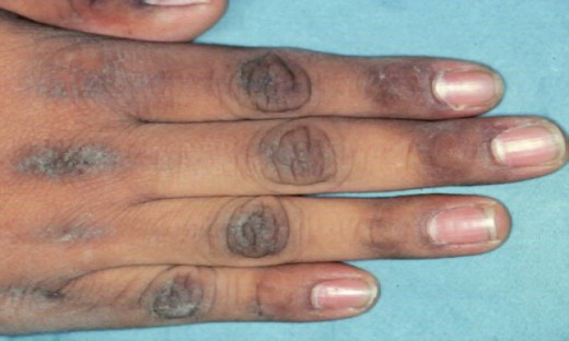Acanthosis Nigricans in the finger knuckles.