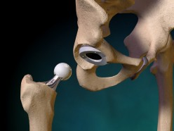 Surviving Total Hip Replacement Surgery:  When the Other Hip Needs Attention.