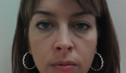 Under-eye Swelling is a very common presentation of Bags under Eye.