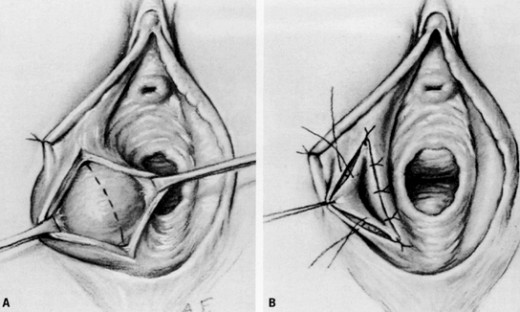 #4: Marsupialization is a modified type of surgical drainage of bartholin's cyst. It creates a permanent opening in the gland.
