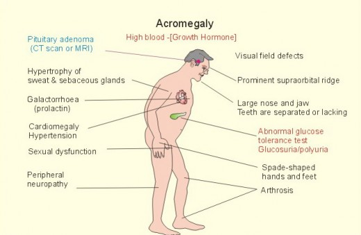 Acromegaly causes and results...