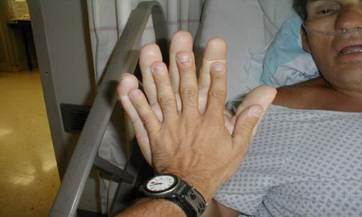 #7: The hand become too large due to excess growth hormone. Look the difference between two hands.