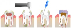 Root Canal Therapy or Endodontic Therapy- a Solution Towards Permanent Treatment or a Continuation of Problem and Pain?