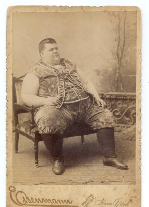 Chauncy Morlan, Circus Fat Man about 100 years ago-- people would pay good money to see him so rare was his obesity then-- today we see people this size and bigger all over the mall.
