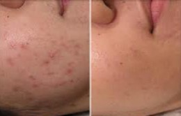 Facial Scars Before and After Laser Therapy