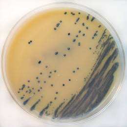 MRSA can be lethal