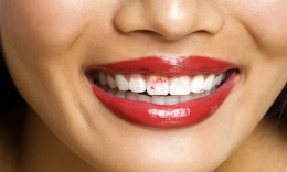 #6: You may notice that your lipstick become stuck to your teeth due to decreased mouth saliva.