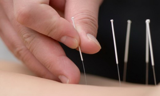 Acupuncture is found to be effective in the treatment of Dry Mouth...
