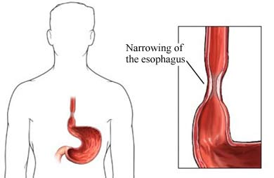 Another illustration of Esophageal stricture.