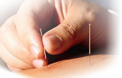 #3: Acupuncture may relieve heartburn.