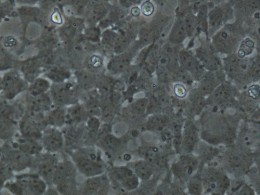 Microscopic photo of neural stem cells. Taken Summer 2011 at the Buck Institute.