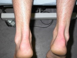 Swelling around the ankle joint is one of the most common symptoms associated with ruptured Achilles tendon.
