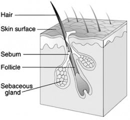 Sebum and dirt become trapped in the hair follicles, the start of fighting acne.
