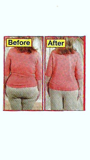 Picture of Before and After Butt Surgery