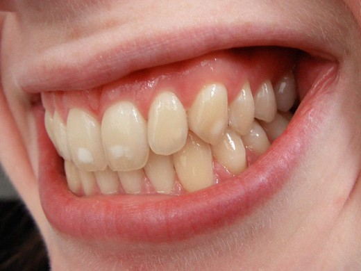 Mild Dental Fluorosis ~ one of many side effects of over exposure to fluoride.