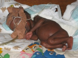 A small premature baby in with an oxygen mask improvised from a medication cup and dressing tape (plaster). ECWA Evangel Hospital, Jos, Nigeria.