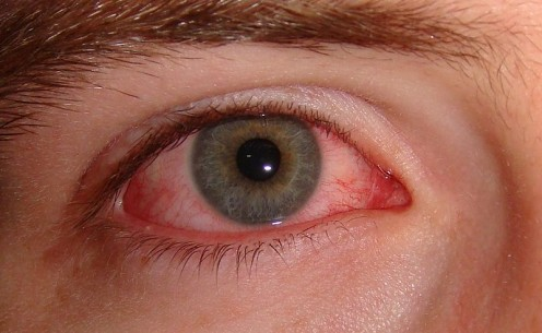 The eye can become extremely red due to irritation in Dry Eye Syndrome.