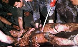 The CIA has often been implicated in torture. In this photo of w bloodied victim, it appears that electroshock is being applied to the genitals.