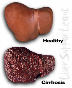 Herbs and Herbal Remedies For Liver Support and Liver Detox