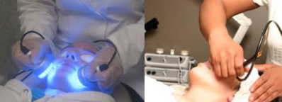 Blue Laser Light Therapy