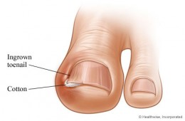 insertion of cotton wool for treatment of ingrowing toenail