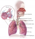 Bronchitis - A Natural Approach
