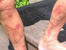 Burns suffered from Giant Hogweed sap and sunlight exposure