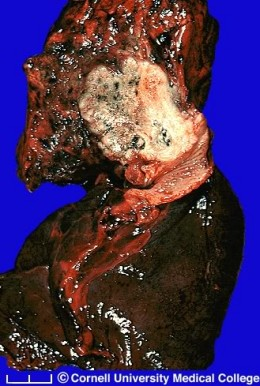 Lung diseased from smoking.