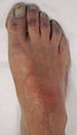 Blue Skin Disorder mainfested on the Foot