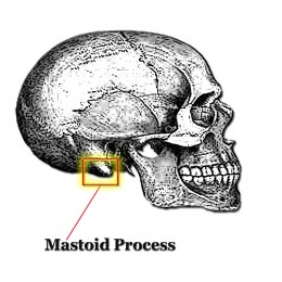 A BAHA hearing aid has a titanium screw implanted into the mastoid process. It transmits vibrations through the skull bone directly to the cochlea.