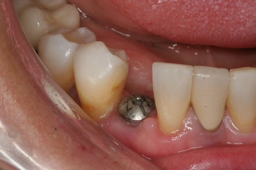a single dental implant - expensive and not always the best method if several teeth are missing.