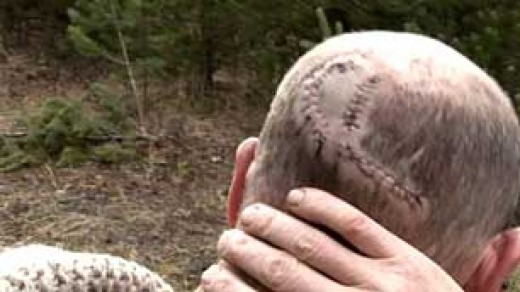 Scars from a bear attack.