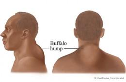 Buffalo hump associated with Cushing syndrome