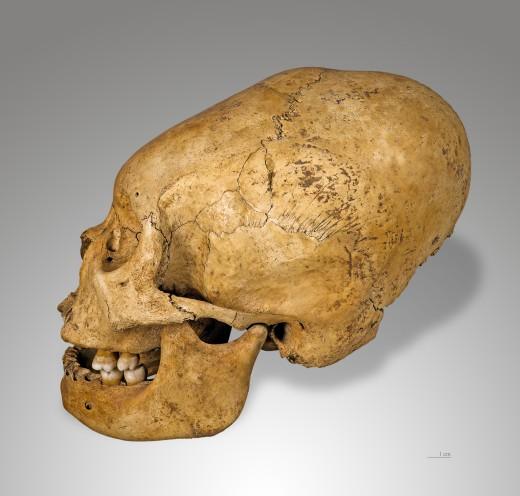 A Nazca deformed skull