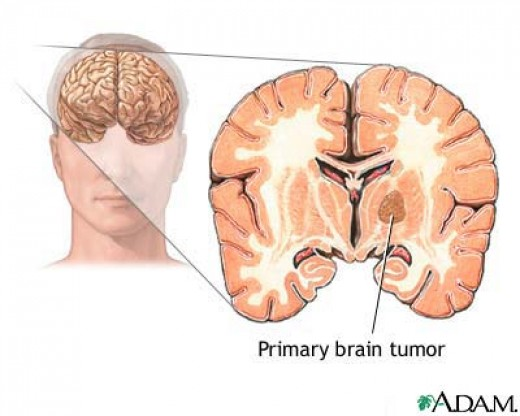 brain tumor at the early stages