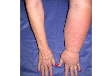 Upper Limbs affected